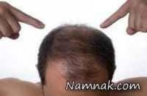 درمان قطعی ریزش مو ارثی
