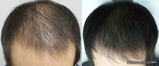 ریزش موی ژنتیکی در زنان