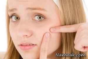 درمان جوش پیشانی