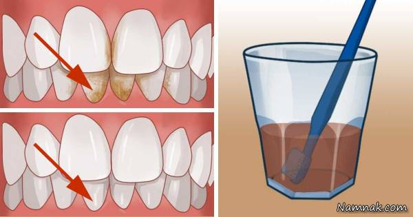 سفیدکردن دندان با سرکه