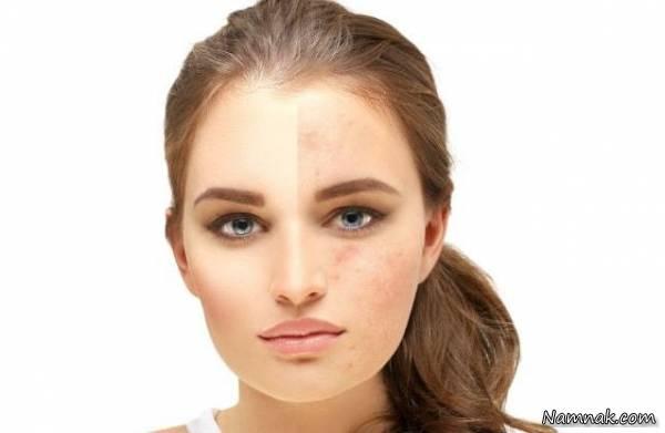 جلوگیری از لک شدن پوست