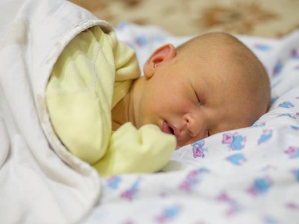 علل زردی نوزاد