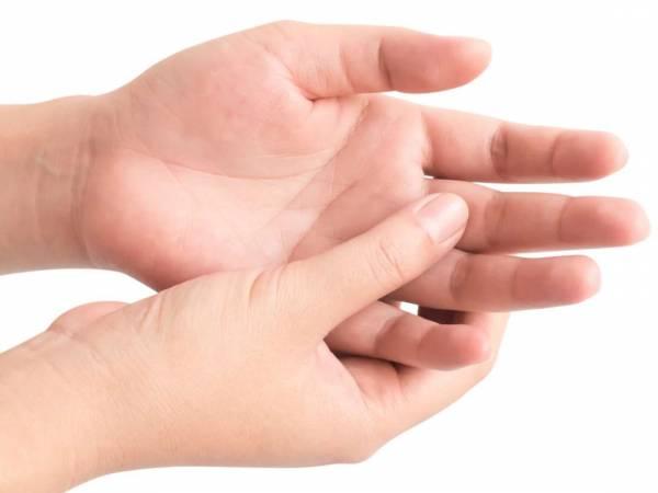 آماس دست