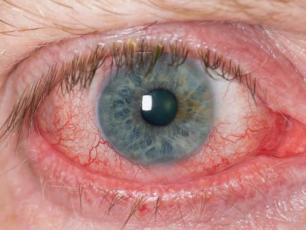 علت چشمهای قرمز