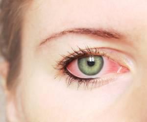 چشم درد