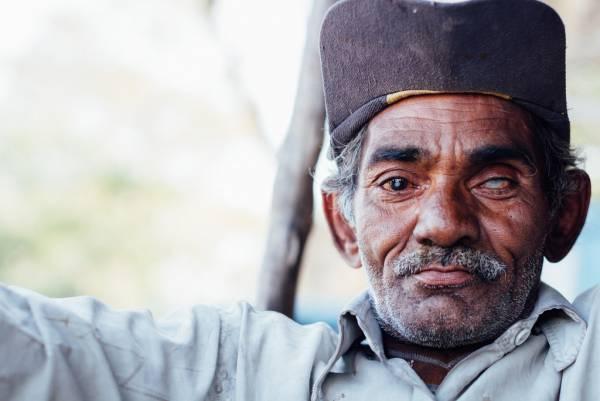 آب مروارید   علت آب مروارید   تشخیص آب مروارید