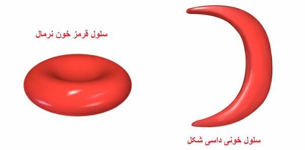 کم خونی داسی