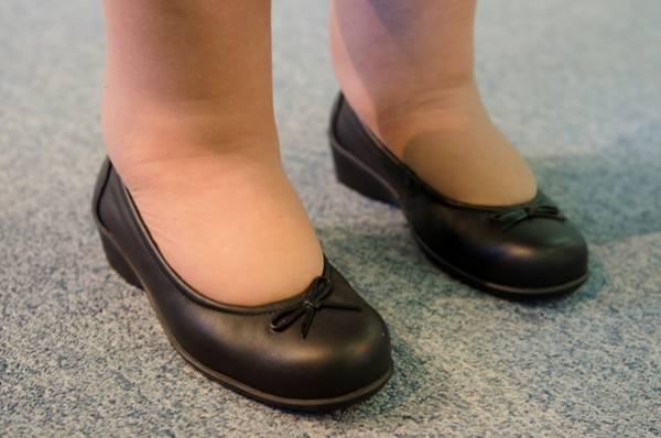 کاهش ورم پا در بارداری