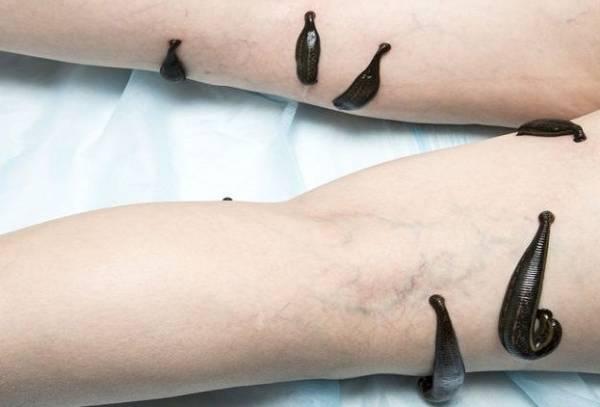 عوارض بعد از زالو درمانی
