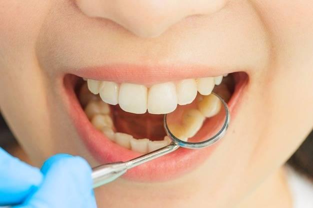 رفع دندان زرد