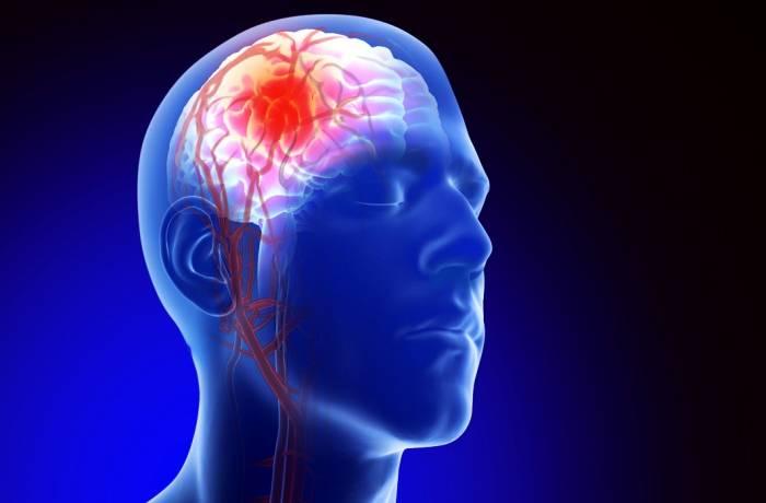دلیل آنوریسم مغزی