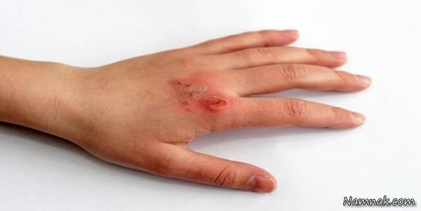 درمان سوختگی پوست