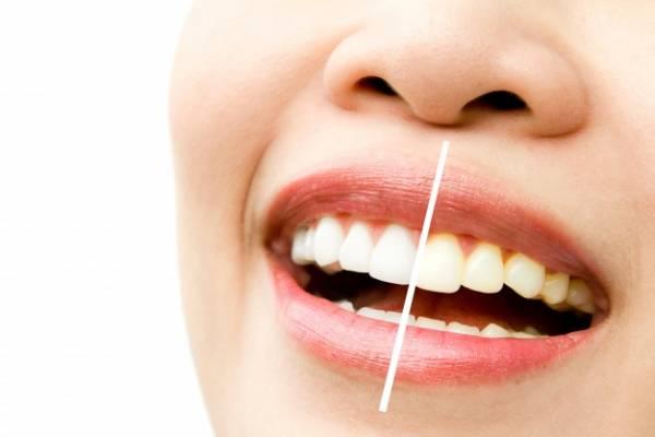 بهبود آبسه دندان