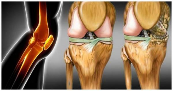 تقویت غضروف زانو غذاهای غضروف ساز کارتیلاژ چیست درمان ساییدگی زانو با پای مرغ مواد غذایی غضروف ساز متخصص استخوان
