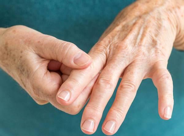 درمان رماتیسم