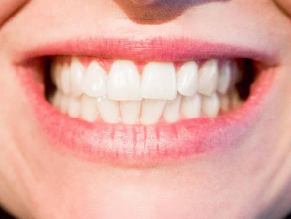 رازهای دندان