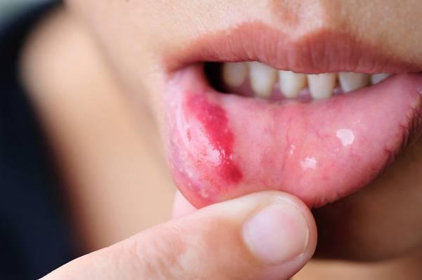 درمان زخم دهان