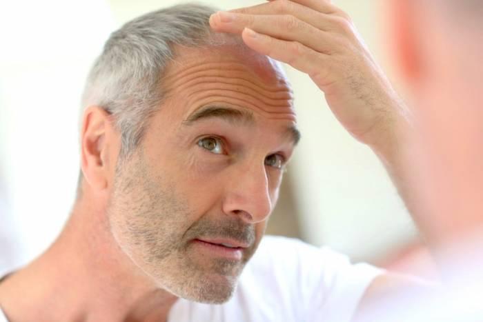 رفع سفیدی موها