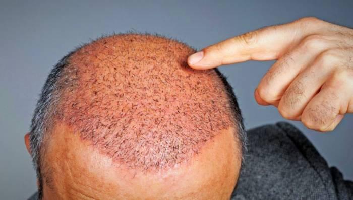 مراقبت بعد از کاشت مو
