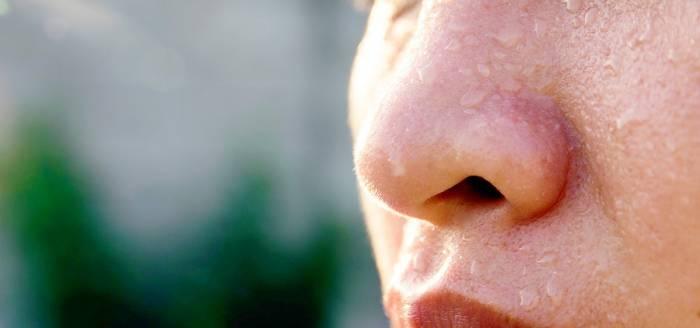 درمان عرق کردن صورت