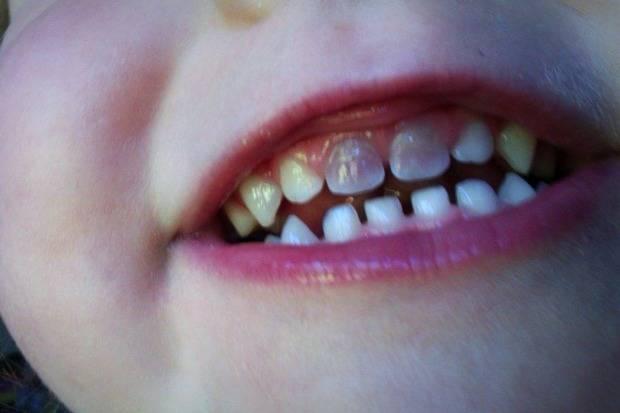 تغییر رنگ دندان نوزاد