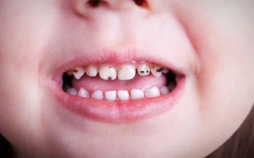 جلوگیری از تغییر رنگ دندان