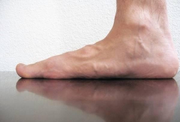 کف پا