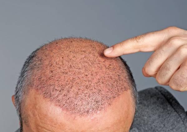عفونت بعد از کاشت مو