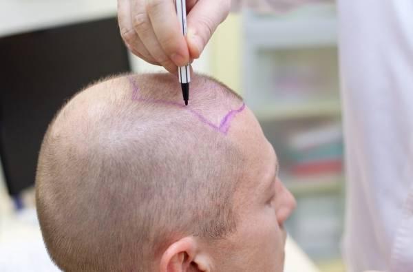 درمان عفونت بعد از کاشت مو