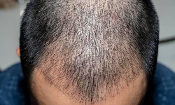 نشانه های عفونت بعد از کاشت مو