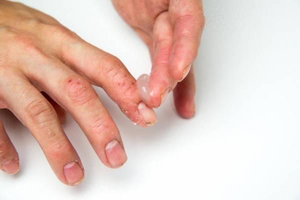 درمان صدف ناخن