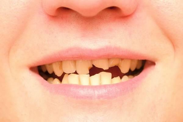 دندان و فرم بدن
