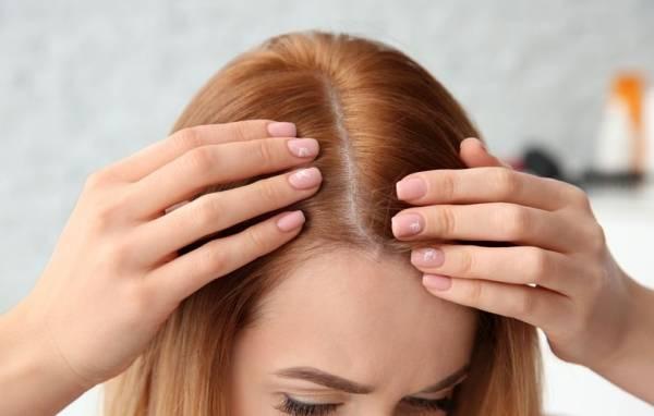 علت درد پوست سر