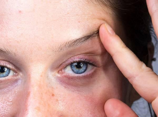 علت سنگینی پلک چشم