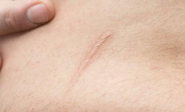 درمان کلوئید پوستی