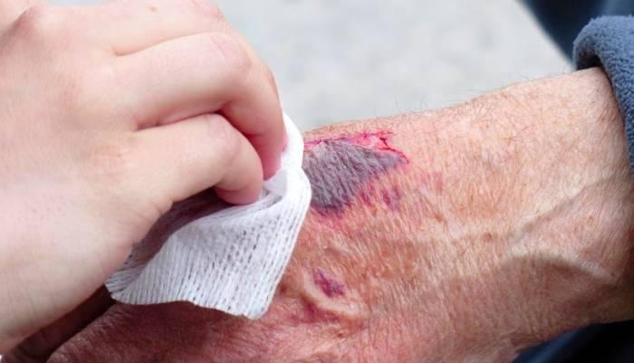 سوختگی و زخم