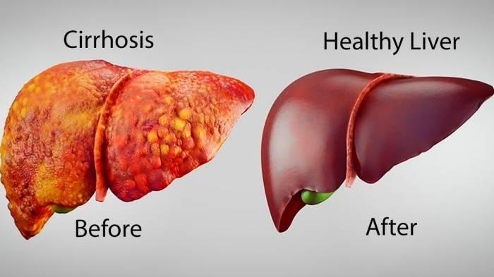 تطهير الكبد