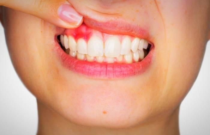 زخم های دهان