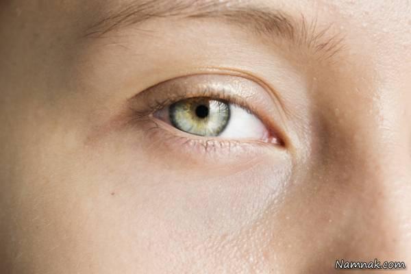 لیزر موهای زائد اطراف چشم