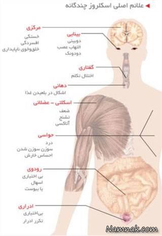 علایم اسکلروز