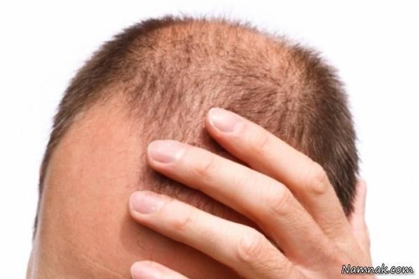 طب سنتی ریزش مو