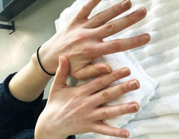 بررسی ناخن ها
