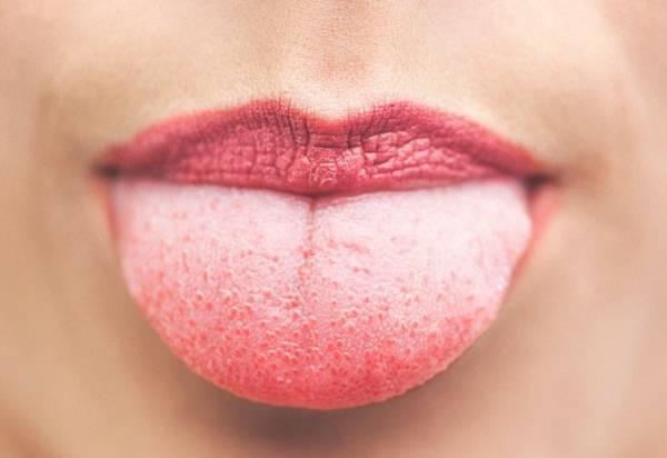 بیماری زبان