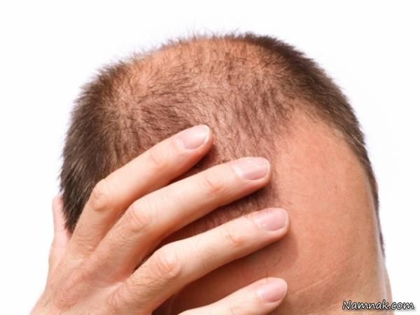 ریزش مو ژنتیک