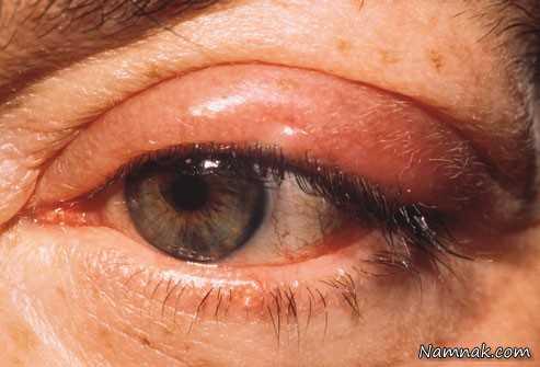 درمان جوش زدن چشم