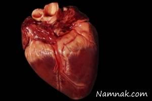عکس باورنکردنی از قلب بدون خون