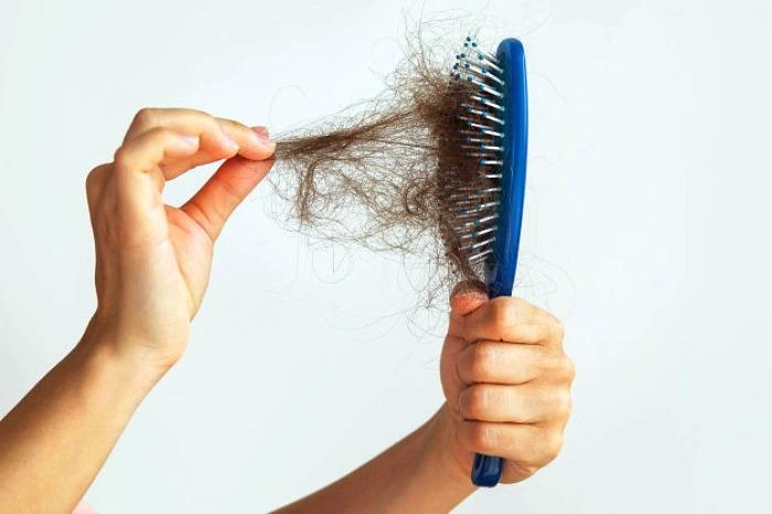 ریزش موی معمولی و شدید