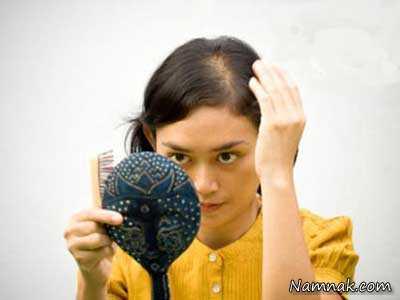 درمان ریزش مو کودکان