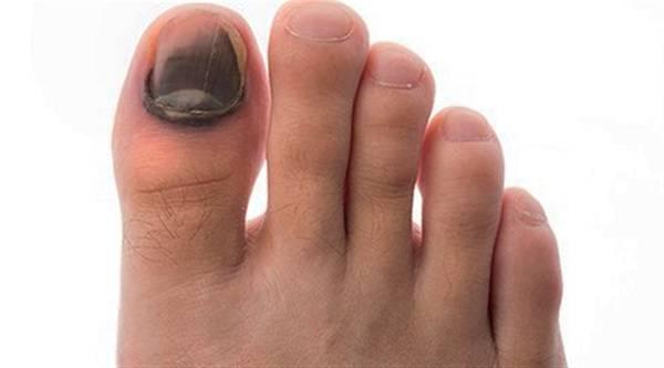 سیاهی انگشتان پا