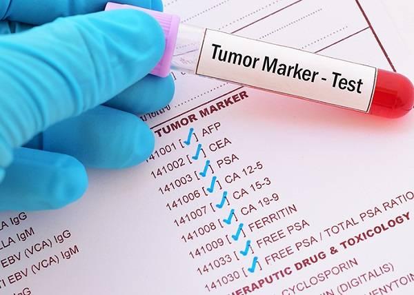 آزمایش تومور